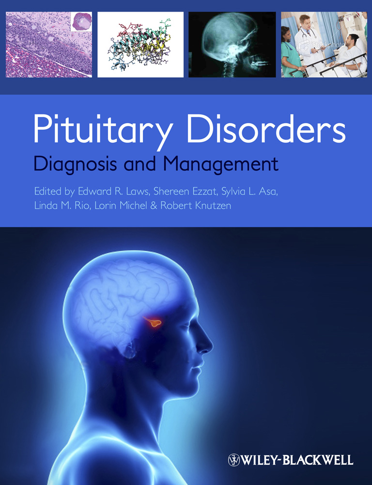 Book Cover PituitaryDisorders1000